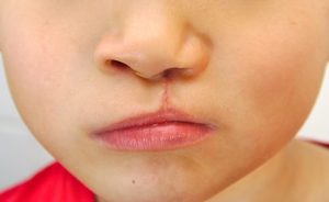 Boy showing unilateral cleft lip repaired.
