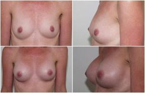 breast augmentation nz
