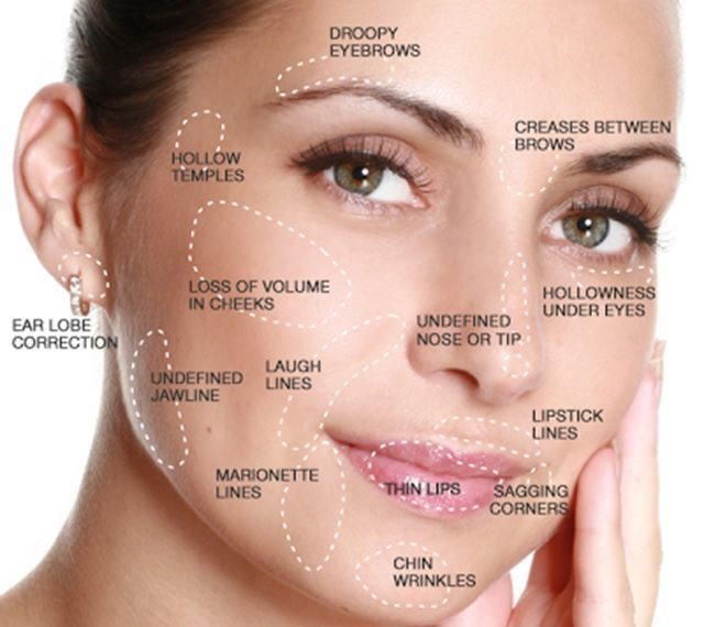 botox vs dermal fillers  select the right solution to your