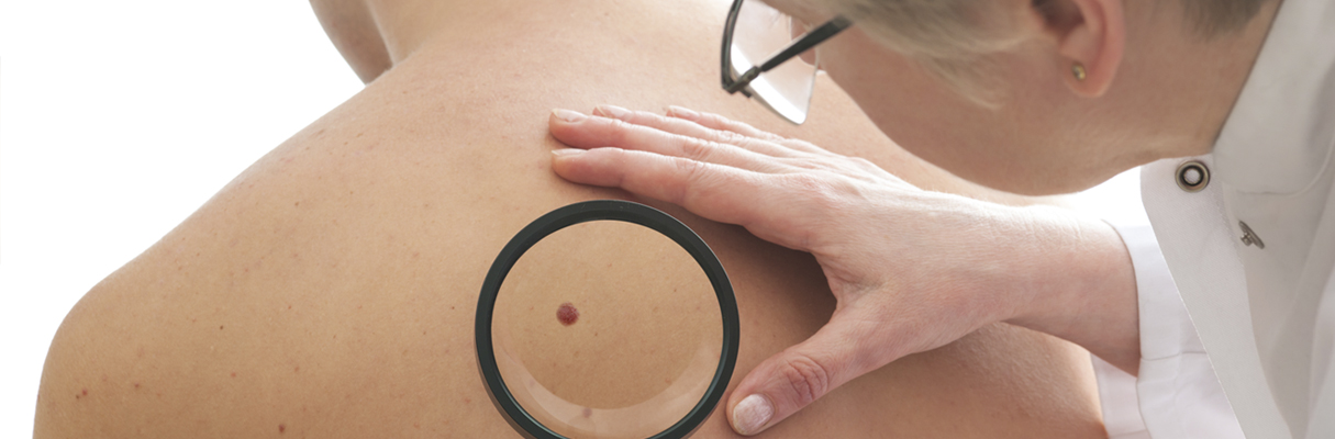 mole diagnosis auckland plastic surgical centre