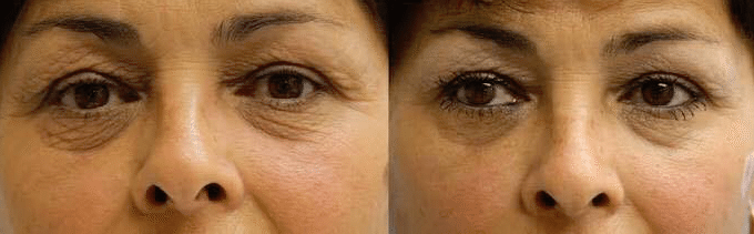 platelete Rich Plasma Treatment New Zealand