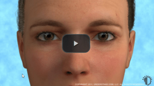 eye procedure video image link