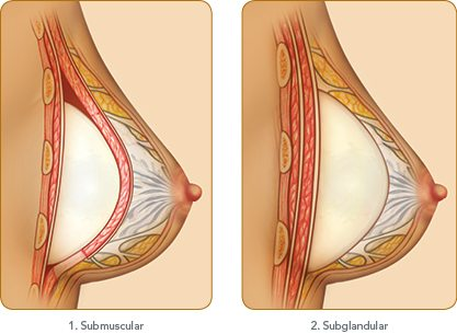 breast diagram